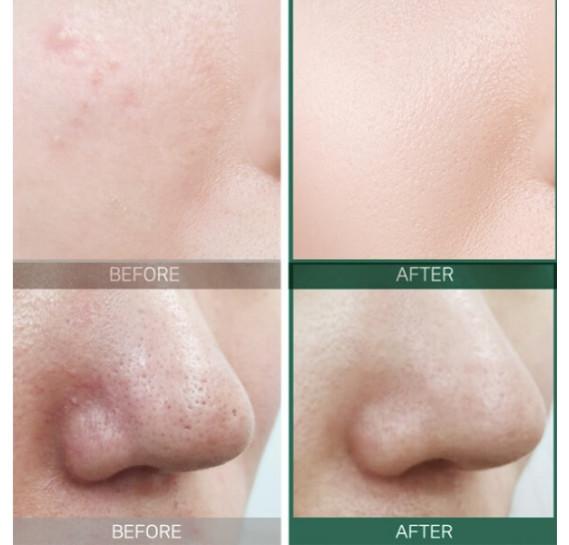 Кислотный очищающий тоник для проблемной кожи Some By Mi AHA-BHA-PHA 30 Days Miracle Toner 150 мл